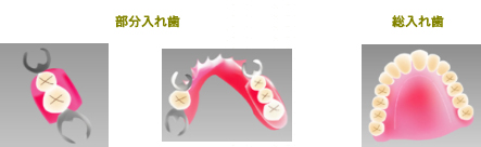 以前から、失った歯の修復法として