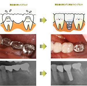 ほとんど同じ感覚で咬む機能を回復できる画期的な方法